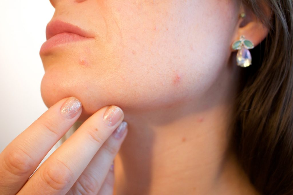 Acne symptoms and treatment