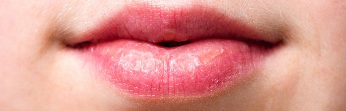 Cold Sore causes and symptoms