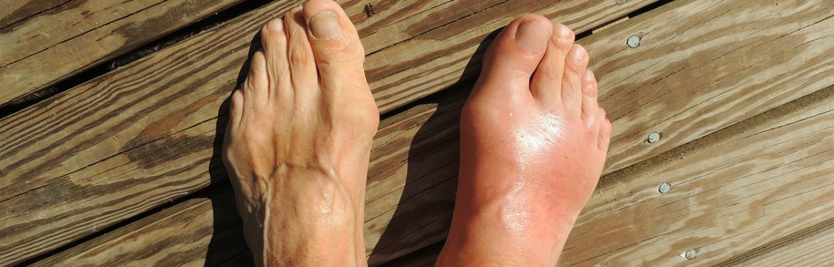 Gout symptoms and treatment