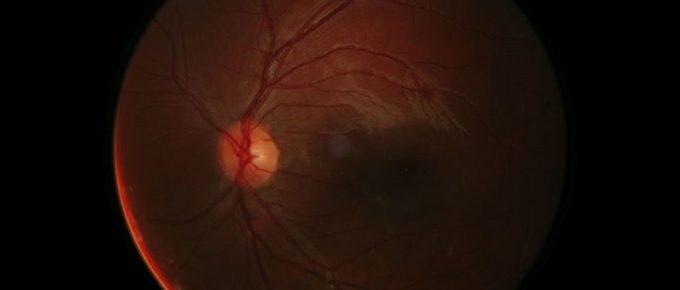 Pink Eye (Conjunctivitis) symptoms and treatment