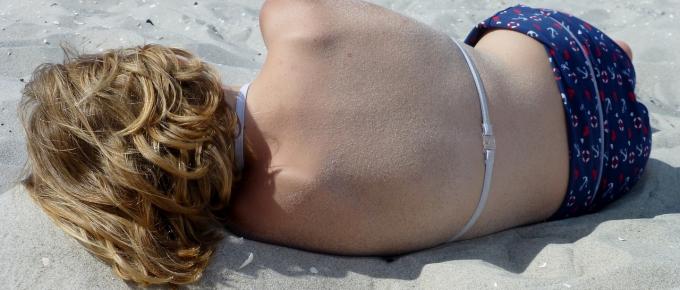 Sunburn symptoms and treatment