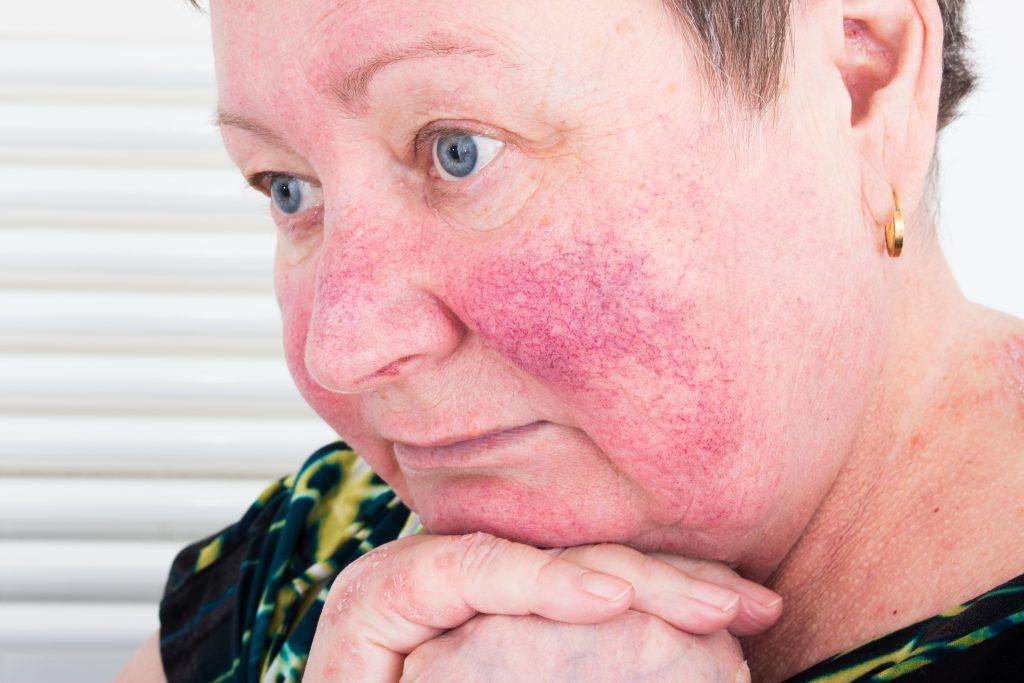 Rosacea symptoms and treatment