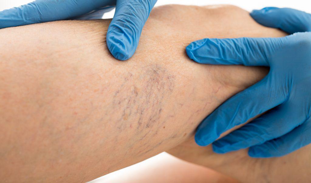 Varicose Vein symptoms and treatment