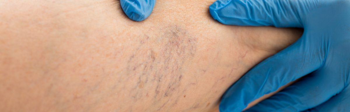Varicose Vein symptoms and treatment